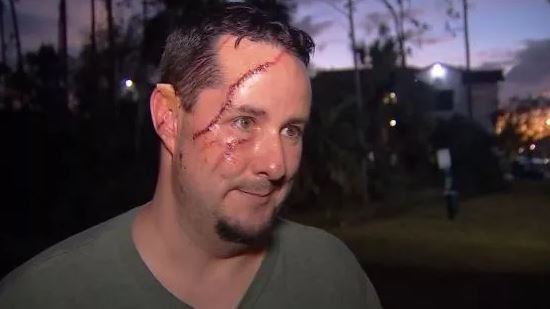 Man makes history as the first in South Florida to sustain a terrifying injury from this dangerous animal