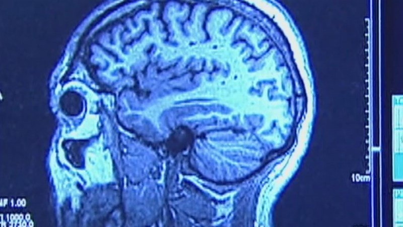 New Study Links Traumatic Brain Injuries with Increased Dementia Risk