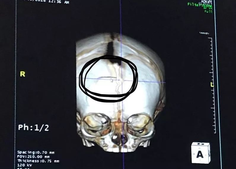 This MRI scan, posted to the Healing for McKenna Facebook page, shows the skull fracture.